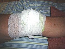 Om de zwelling te verminderen en te koelen wordt de knie tijdens de nacht in koolbladen ingepakt